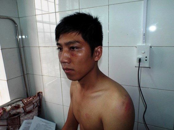 Công an xã bị tố đánh người tại trụ sở