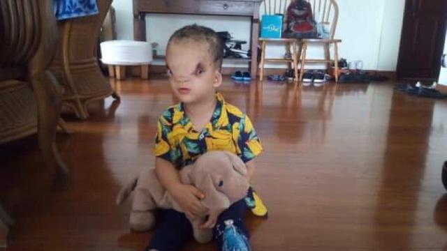 Quảng Bình:  Bé 3 tuổi có khuôn mặt dị dạng đã được phẫu thuật tại Singapore