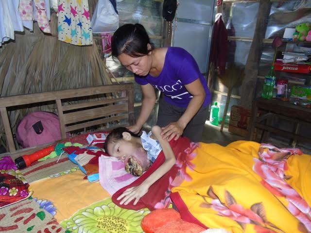 Quảng Bình: Xót xa bé gái có khối u tràn ra cả miệng